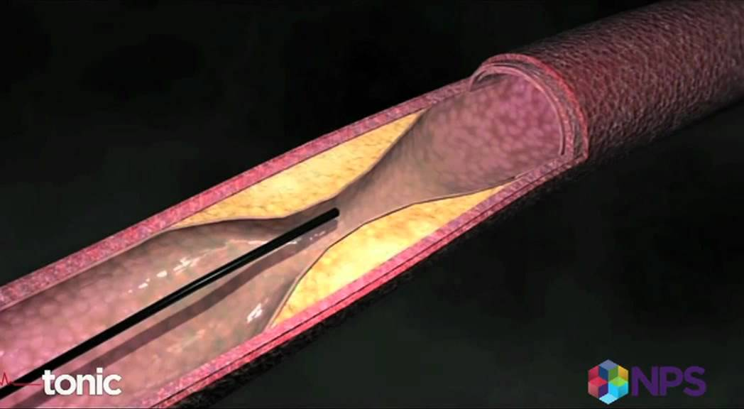 how to know if you need a stent