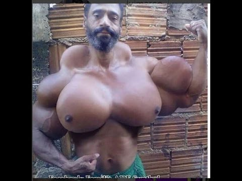 Biggest Synthol Freak Ever !!!
