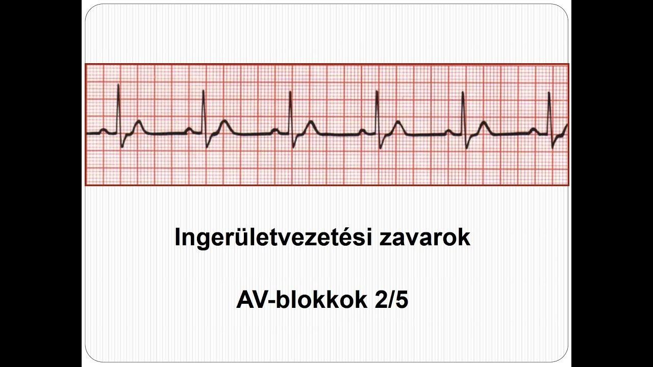 dysbiosis kocsmázott)