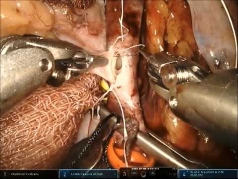 Robotic Kidney Transplant