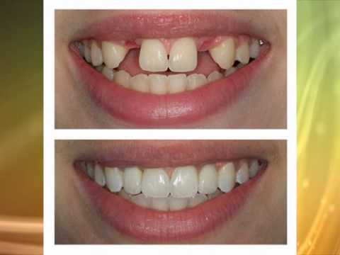 Dental Implants - Dental Post - Before & After Photos