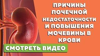 Причины почечной недостаточности и   повышения мочевины в крови