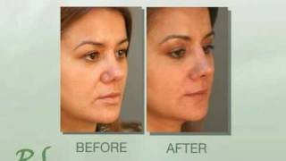 Get Rid Of Smile Lines With Restylane!