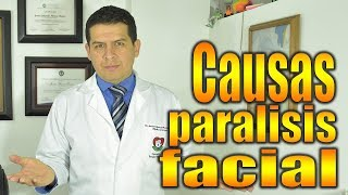 Facial parálisis diabetes la causa