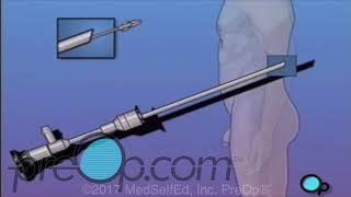 Male Cystoscopy Procedure | PreOp®  Patient Education