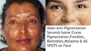 make anti pigmentation serum home cures pigmentation melasma blemishes freckles spots on face