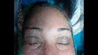Blepharoplasty in Ludhiana (Sno Super Speciality Clinic)