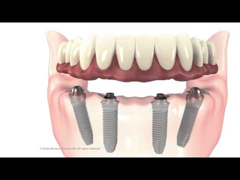 Denver CO Dentist Shares How Implant Supported Dentures Can Replace Loose Lower Dentures