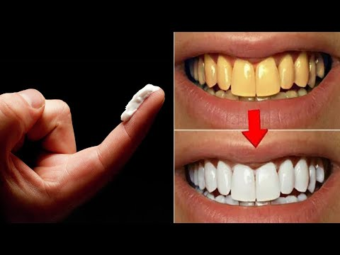 magical-teeth-whitening-remedy,-whiten-your-teeth-at-home-in-2-minutes-without-dentist