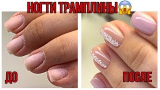 НОГТИ ТРАМПЛИНЫ Преображение вверх растущих ногтей Простой маникюр
