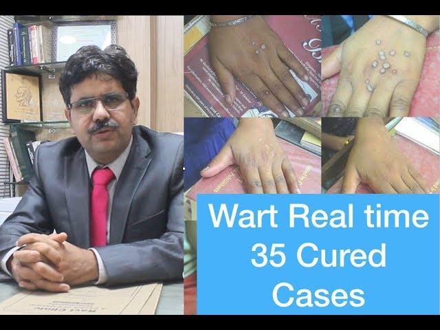 Flat warts  or Face warts 35 Real time cured cases