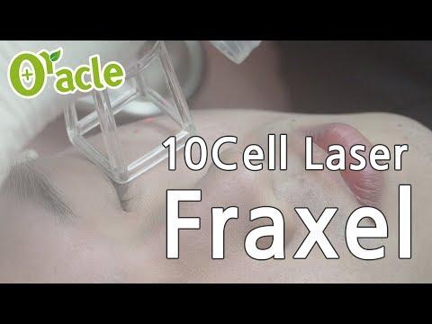 10CELL : 10600nm CO2 Fractional Laser