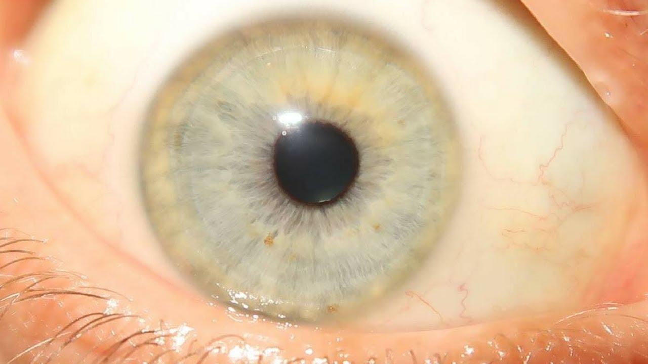Kann sich die Augenfarbe durch Ernährungsumstellung/ Entgiftung verändern?