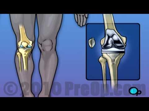 Knee 3D Animation Videos - Arthroscopic Surgery, Joint