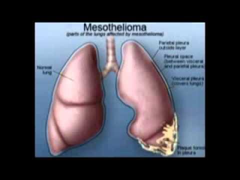 """what-is-mesothelioma---""""mesothelioma"""""""
