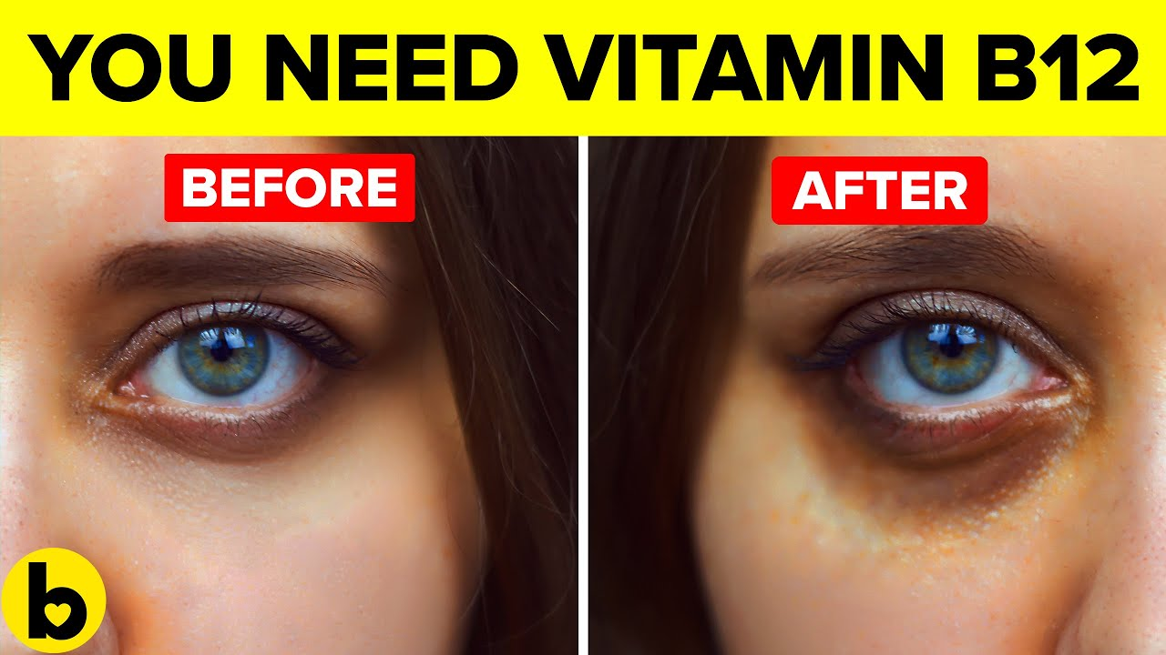 How Vitamin B12 Deficiency is hurting your Health without you knowing