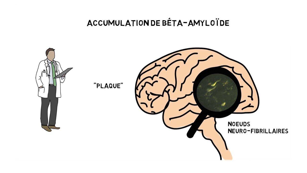 Download Maladie d'Alzheimer: les causes de la maladie