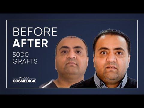Dr. Acar 5000 Grafts FUE Cosmedica Hair Transplant Turkey - www.cosmedica.com