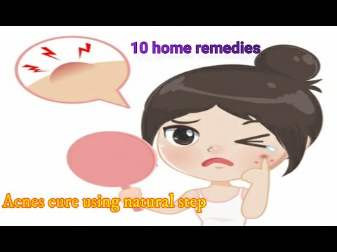 New Powerful Home Remedies and Treatment for Acne/How to Get Rid of Acne Fast(2020)