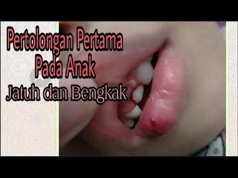 Cara Mengobati Bibir Pecah dan Bibir Bruntusan - My True Story.