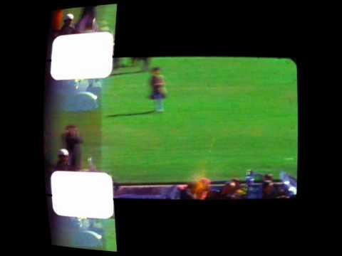JFK Assassination : The Zapruder Film - Frames 313, 314, 315