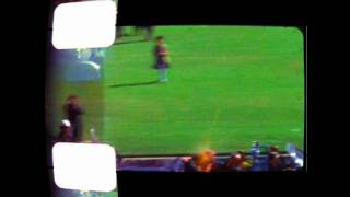 JFK Assassination : The Zapruder Film - Frames 313, 314, 315