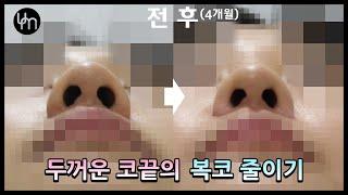 [콧볼축소] 두꺼운 코끝의 복코 줄이기