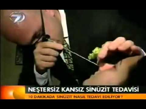 Süreyya Şeneldir Balon Sinoplasti Yöntemi Kanal7