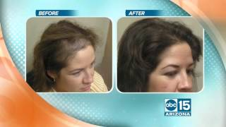 Evolution Hair Loss Institute and Women