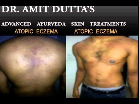 Atopic Eczema Treatments : Ayurvedic Atopic Eczema Specialist – Dr. Amit Dutta