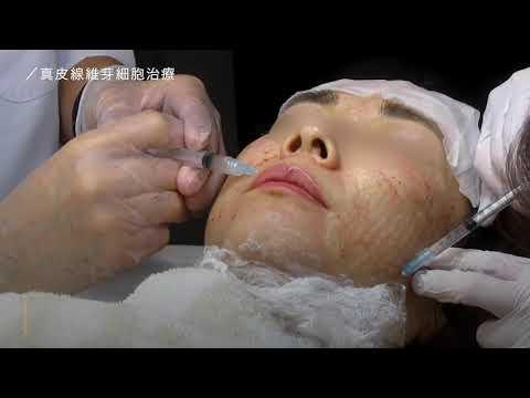 【真皮線維芽細胞療法】肌老化のスピードを確実に遅らせる最先端の再生医療!