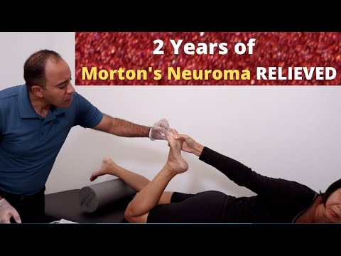 French Patient with 2 Years of Morton's Neuroma Relieved Fast (+ FOLLOW-UP!!!)
