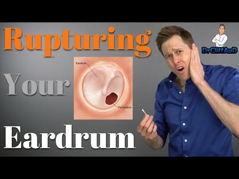 ruptured-eardrum-|-tympanic-membrane-perforations