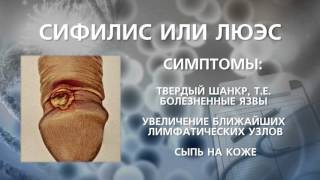 Сифилис или люэс