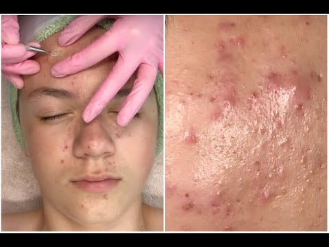 Acne Clarifying Facial Hd Pimple Popping Super Informative Jadeywadey180 Youtube