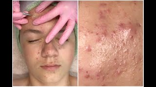 acne Clarifying Facial + HD Pimple Popping |Treatments for ACNE SCARS #02