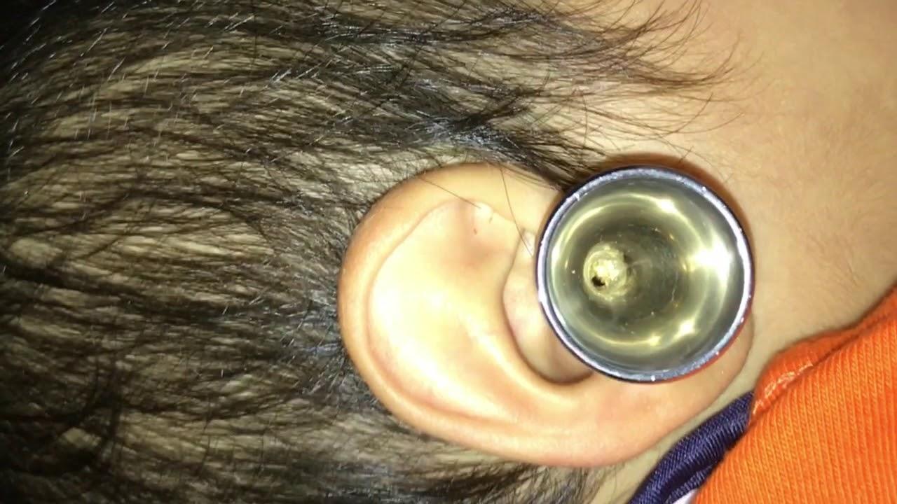 耳 掃除 科 子供 耳鼻