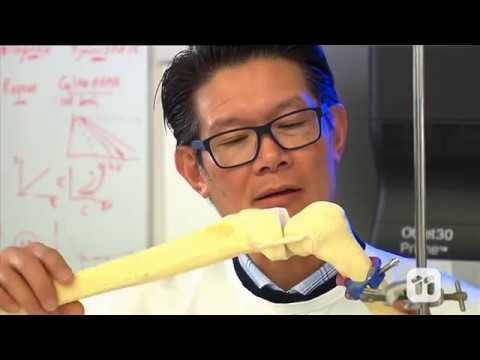 BioPen 3-D: una inyección de hidrogel para regenerar el cartílago