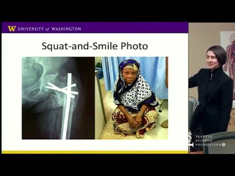 Improving Surgical Follow-up for Traumatic Fractures in Tanzania by Amy Cizik, MPH