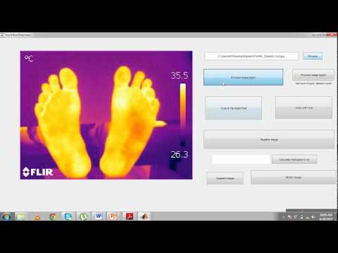 Premature diagnosis of foot ulcers in diabetic patients using thermography