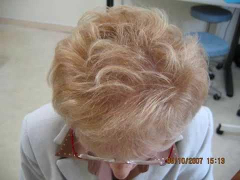greffe de cheveux femme implant capillaire calvitie chute wmv youtube. Black Bedroom Furniture Sets. Home Design Ideas