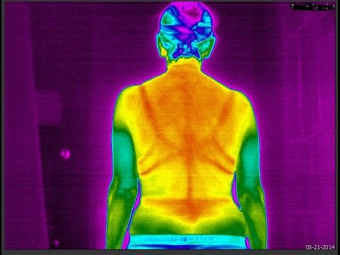 Medical Thermography Training
