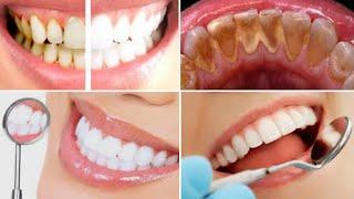 Misture 2 ingredientes e Passe nos Dentes – Veja o Resultado