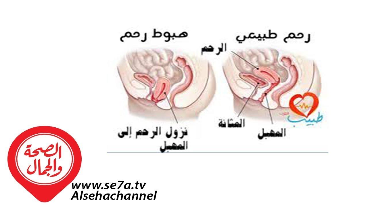 محذوف مسنن بطن هل مشد البطن يسبب نزول الرحم Natural Soap Directory Org