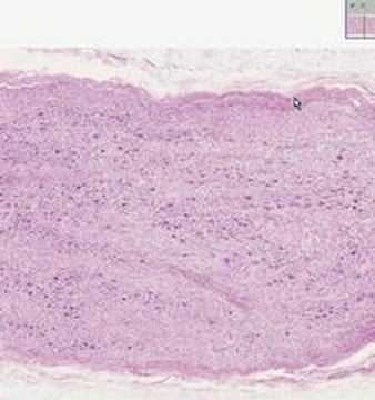 Shotgun Histology Sympathetic Ganglion