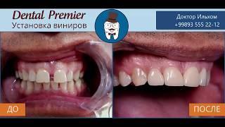 DentalPremier - Виниры №1
