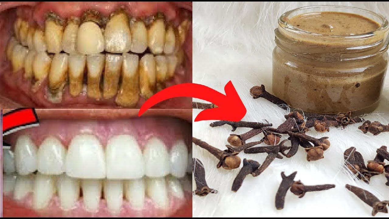 افضل  كريم  بالزنجبيل والقرنفل  لتبييض الاسنان  في دقيقة يزيل  اصفرار الاسنان  ويجعلها بيضاء فورا