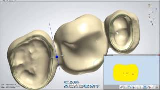 How to Design Bridge Connectors and Anatomical Copings with 3Shape Dental System