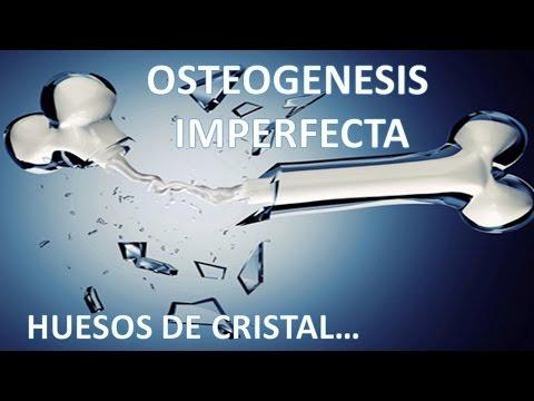 Domingo de Consulta cap 5 Osteogenesis imperfecta