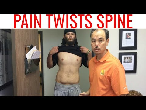 Herniated Disc & 5 Epidurals 💉 ONLY REAL CHIROPRACTIC can help.